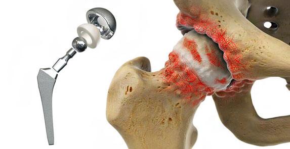 Методи за ефективно лечение на коксартроза на тазобедрената става - Лакът